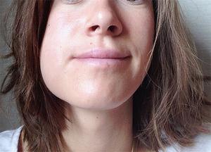 Mundpflege nach dem Besuch beim Zahnarzt