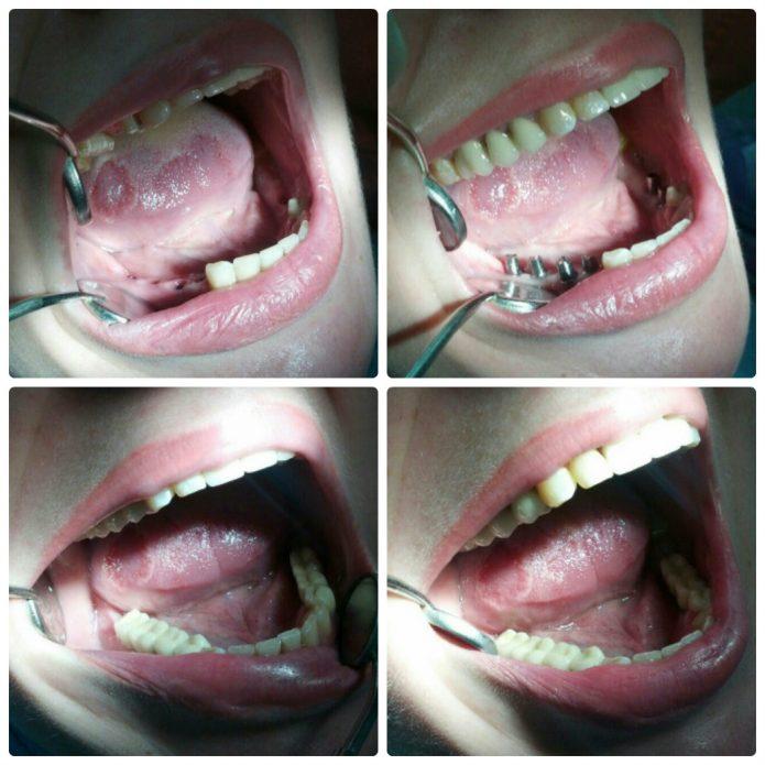 Einbau von Zahnersatz auf Kauzähnen