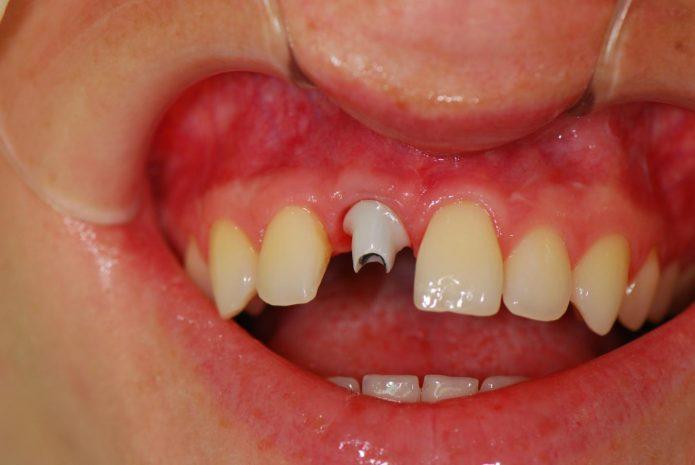 Zähne Kronen