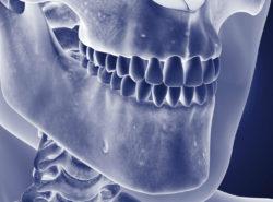 Osteomyelitis des Kiefers
