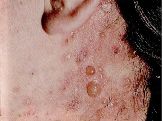Dermatitis Dühring
