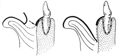 Frenuloplastik-Zaumzeug