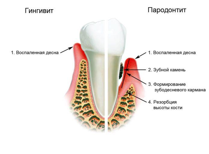 Erkrankungen der Zähne und des Zahnfleisches